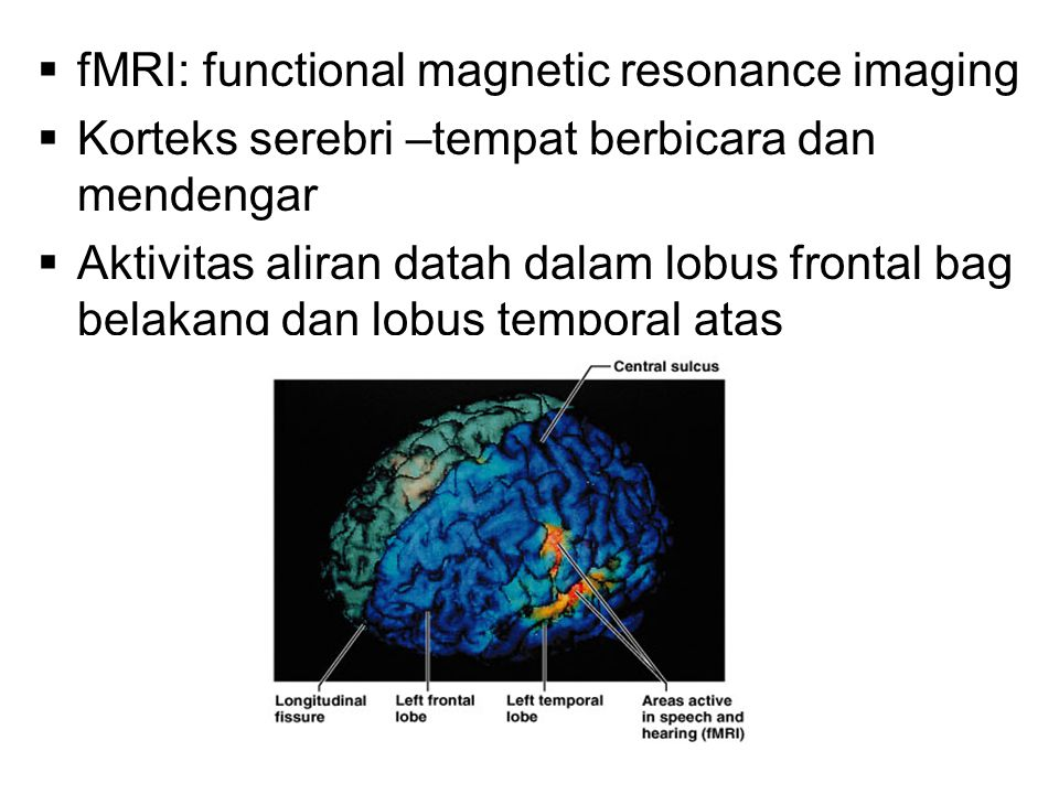 fMRI: functional magnetic resonance imaging