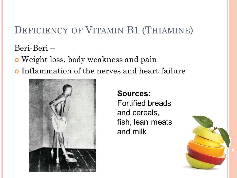 Deficiency of Vitamin B1 (Thiamine)