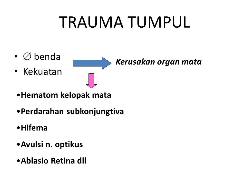 TRAUMA TUMPUL  benda Kekuatan Kerusakan organ mata