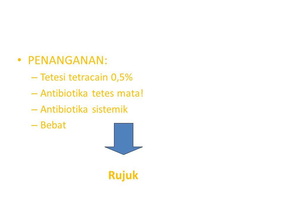 PENANGANAN: Rujuk Tetesi tetracain 0,5% Antibiotika tetes mata!