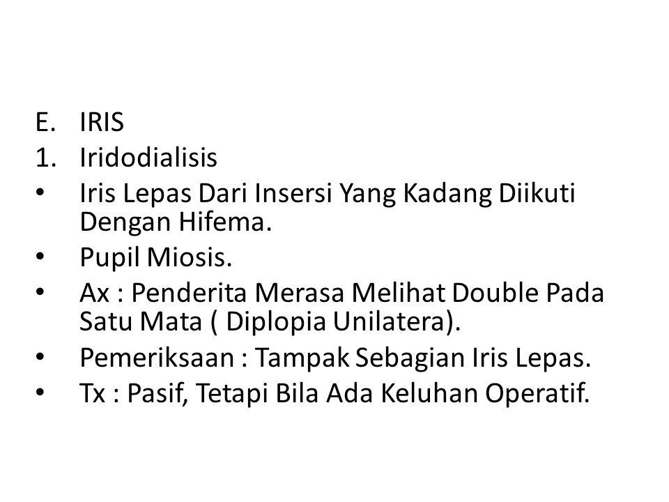 IRIS Iridodialisis. Iris Lepas Dari Insersi Yang Kadang Diikuti Dengan Hifema. Pupil Miosis.