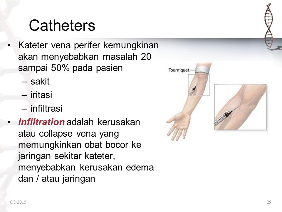 Catheters Kateter vena perifer kemungkinan akan menyebabkan masalah 20 sampai 50% pada pasien. sakit.