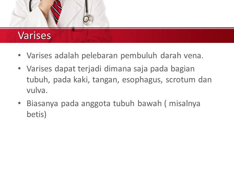 Varises Varises adalah pelebaran pembuluh darah vena.