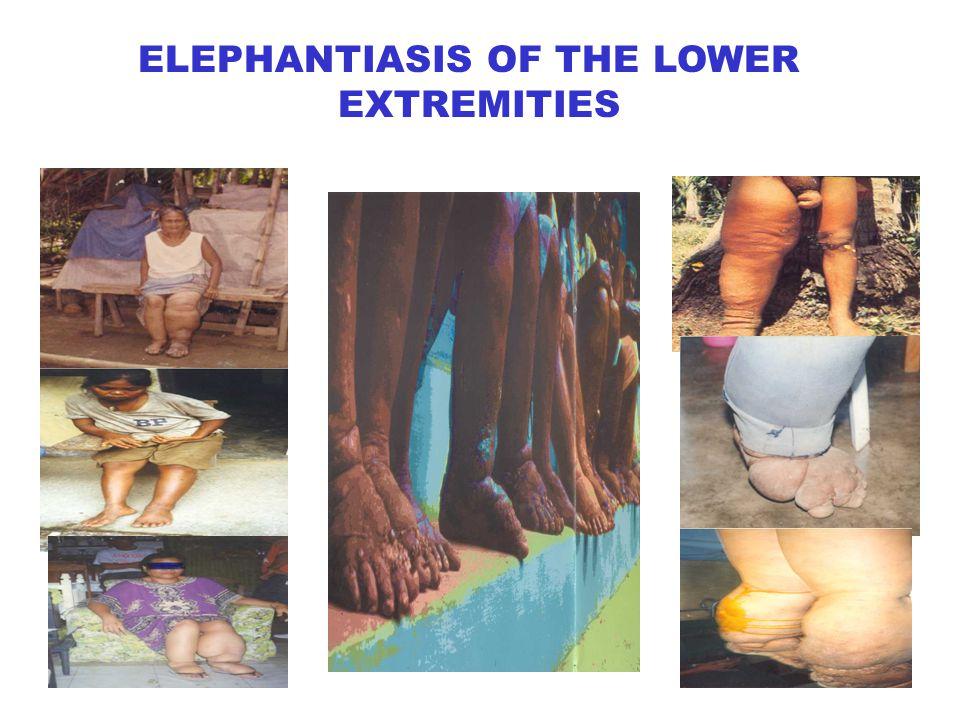 ELEPHANTIASIS OF THE LOWER