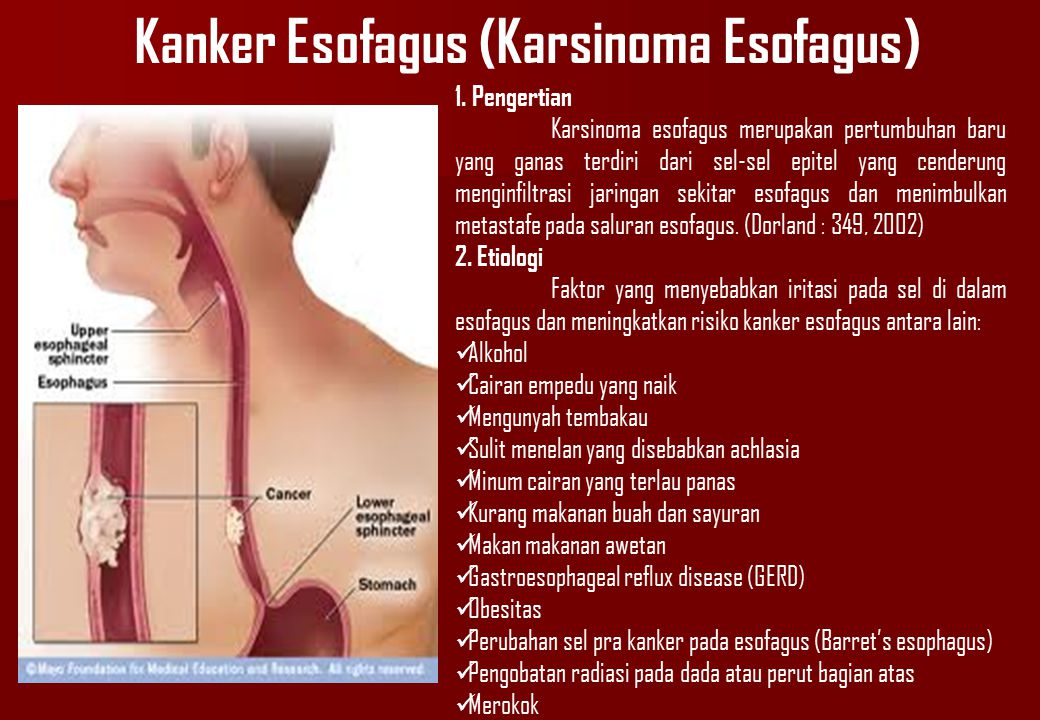 Kanker Esofagus (Karsinoma Esofagus)