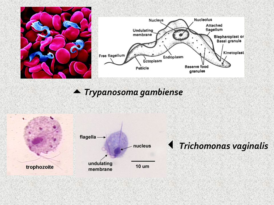 Trichomonas vaginalis
