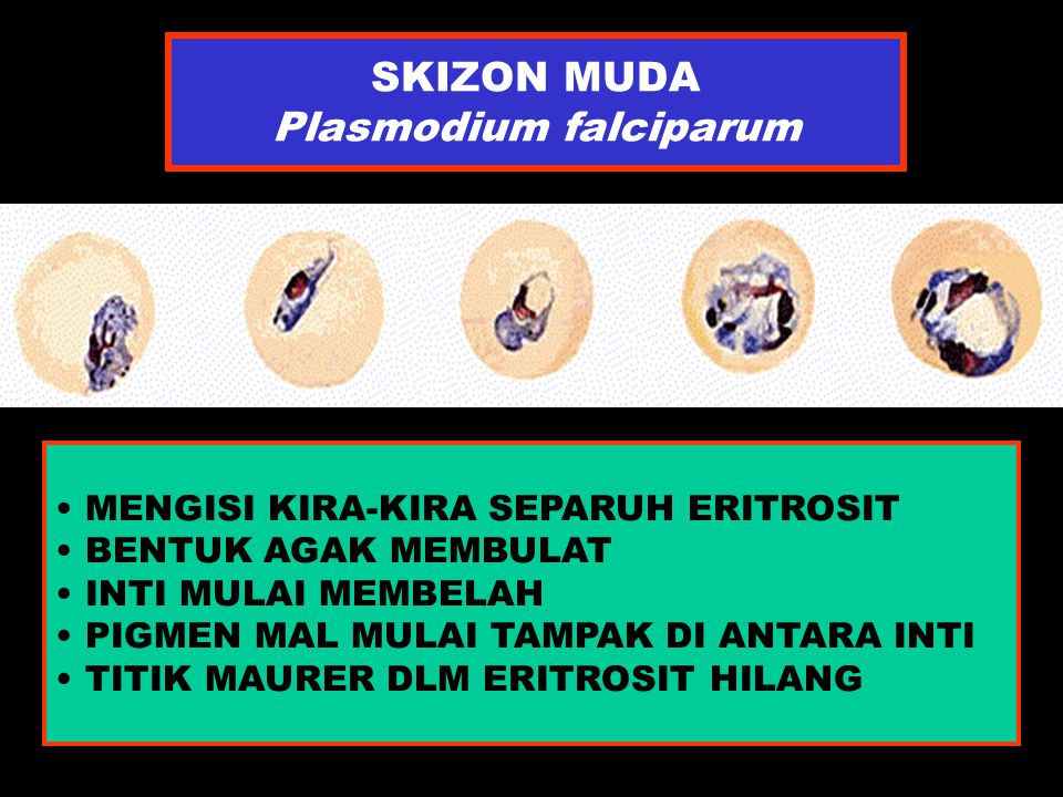 SKIZON MUDA Plasmodium falciparum