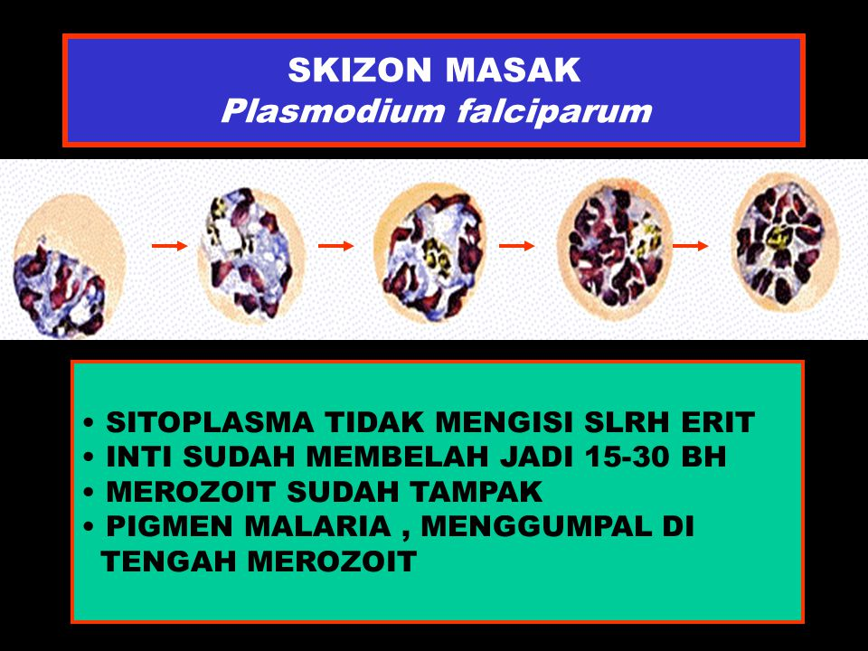 SKIZON MASAK Plasmodium falciparum