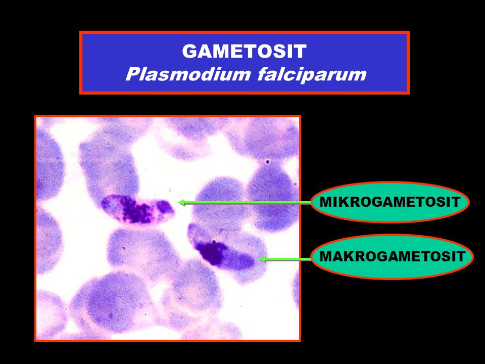 GAMETOSIT Plasmodium falciparum