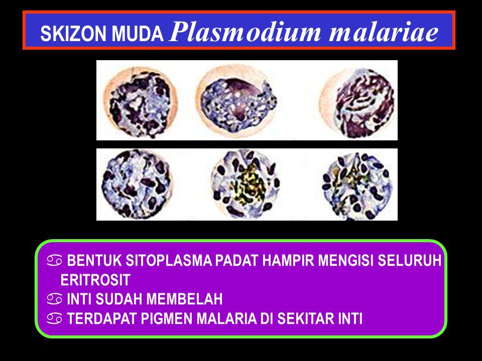 SKIZON MUDA Plasmodium malariae