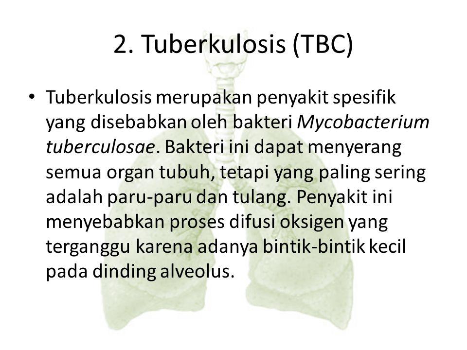 2. Tuberkulosis (TBC)