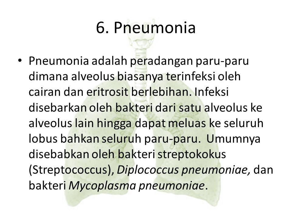 6. Pneumonia