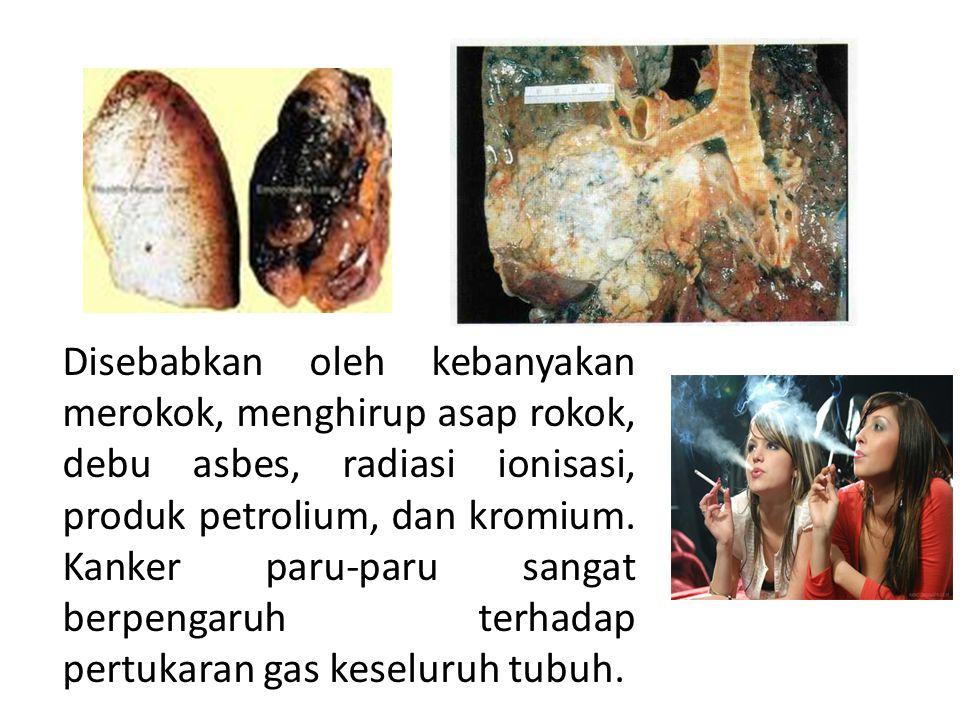 Disebabkan oleh kebanyakan merokok, menghirup asap rokok, debu asbes, radiasi ionisasi, produk petrolium, dan kromium.