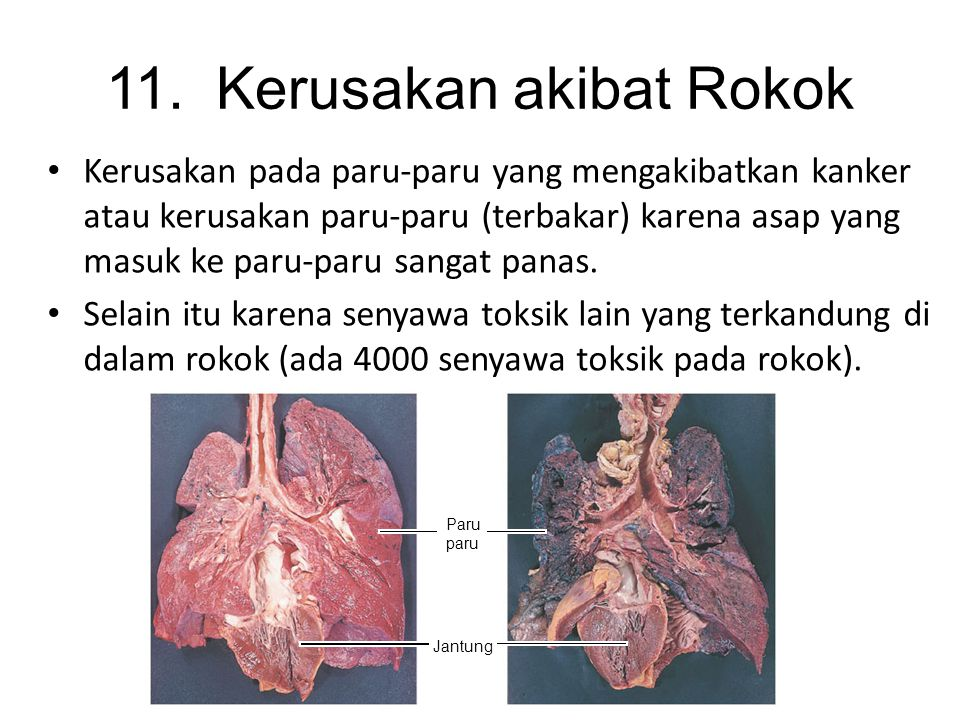 11. Kerusakan akibat Rokok