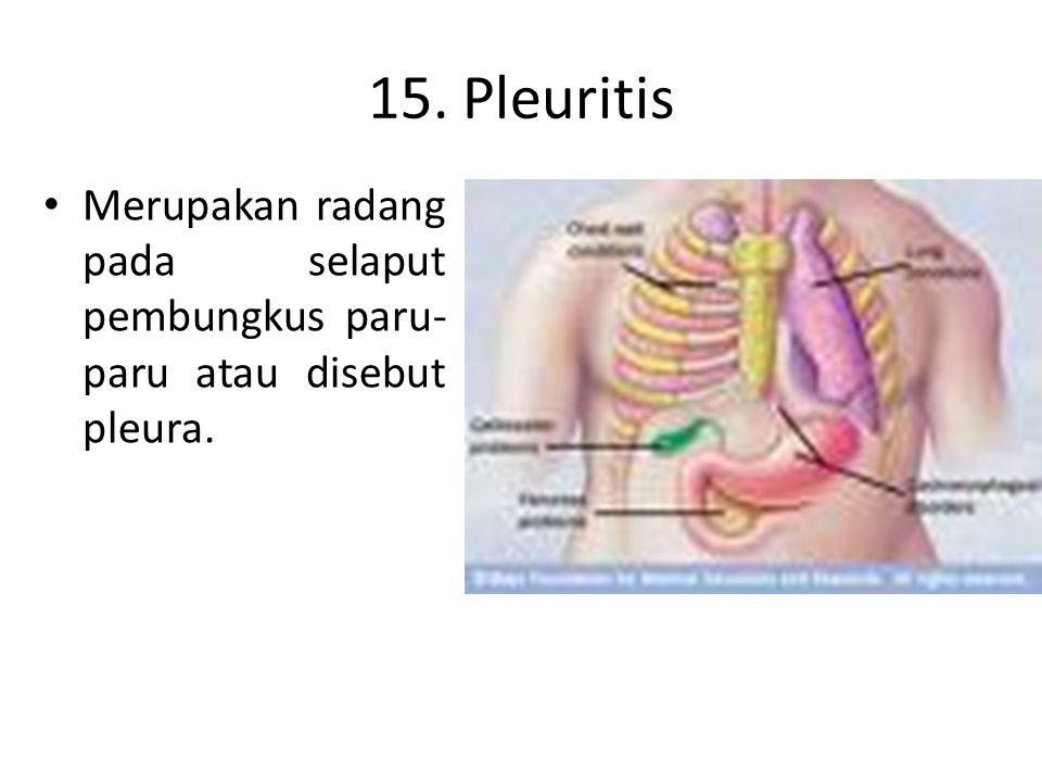 15. Pleuritis Merupakan radang pada selaput pembungkus paru-paru atau disebut pleura.