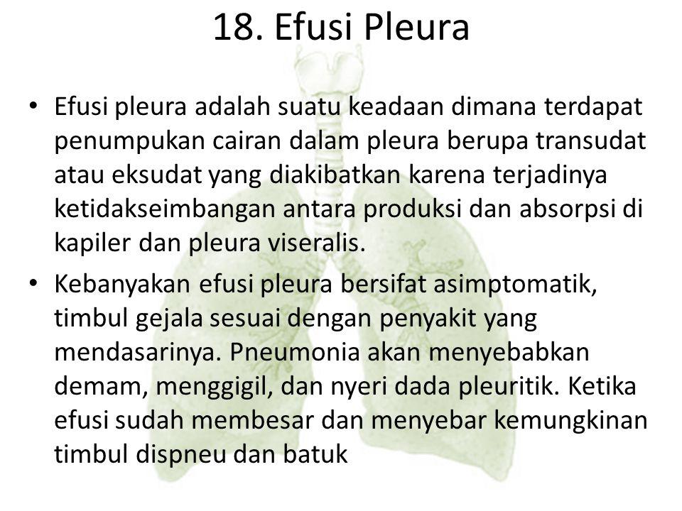 18. Efusi Pleura