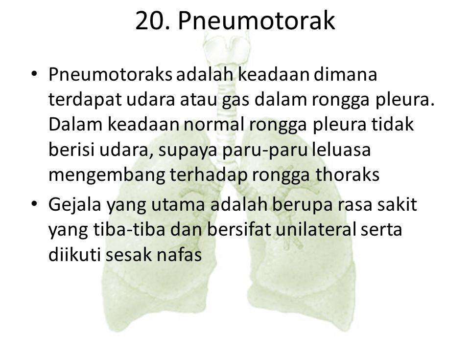 20. Pneumotorak