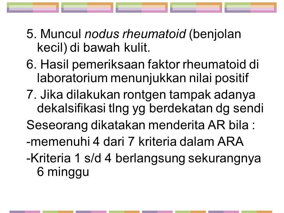 5. Muncul nodus rheumatoid (benjolan kecil) di bawah kulit.