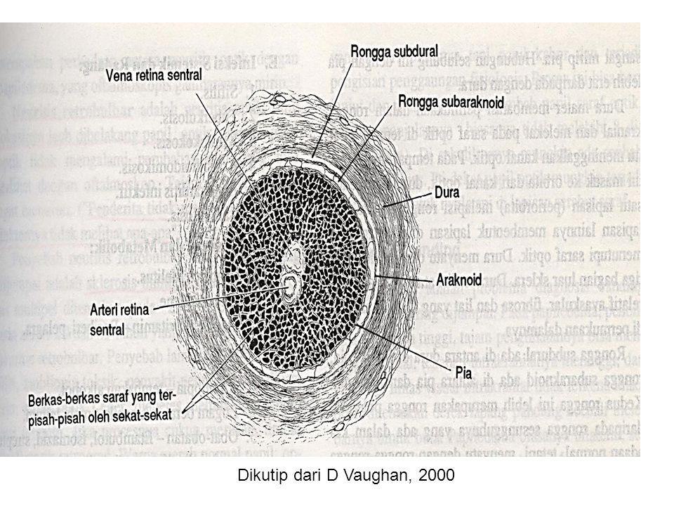 Dikutip dari D Vaughan, 2000