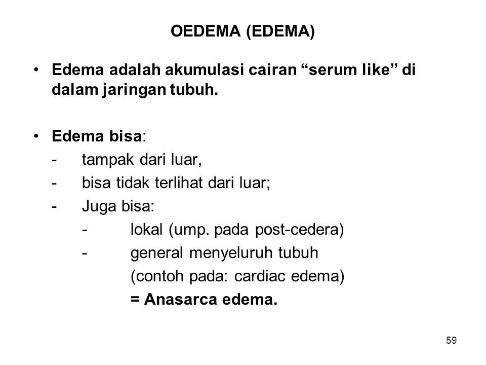 OEDEMA (EDEMA) Edema adalah akumulasi cairan serum like di dalam jaringan tubuh. Edema bisa: - tampak dari luar,