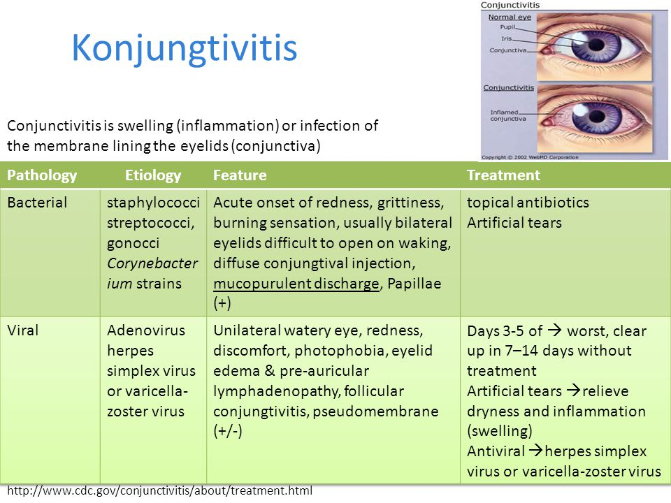 Konjungtivitis Conjunctivitis is swelling (inflammation) or infection of the membrane lining the eyelids (conjunctiva)