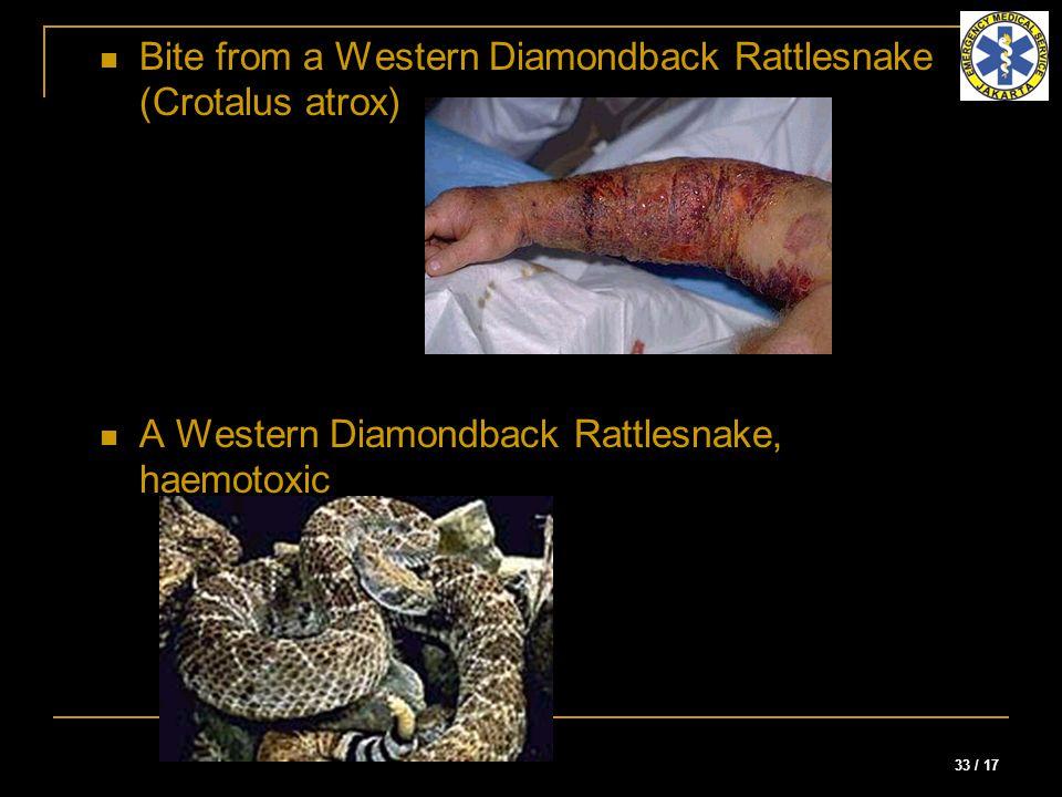 Bite from a Western Diamondback Rattlesnake (Crotalus atrox)