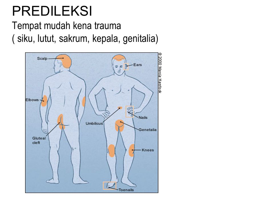PREDILEKSI Tempat mudah kena trauma ( siku, lutut, sakrum, kepala, genitalia)