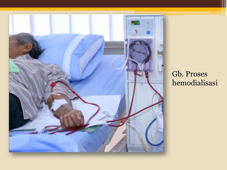 Gb. Proses hemodialisasi