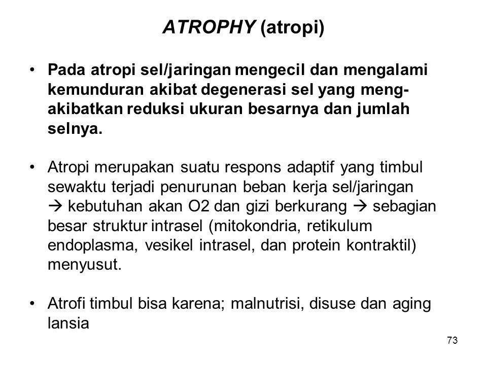 ATROPHY (atropi) Pada atropi sel/jaringan mengecil dan mengalami
