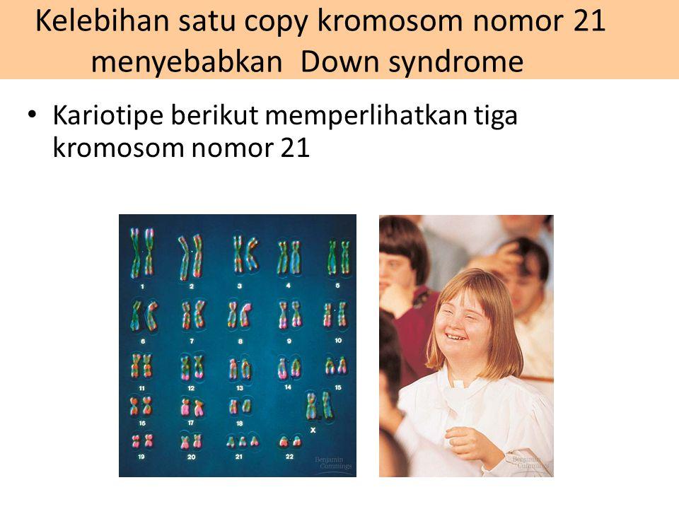 Kelebihan satu copy kromosom nomor 21 menyebabkan Down syndrome