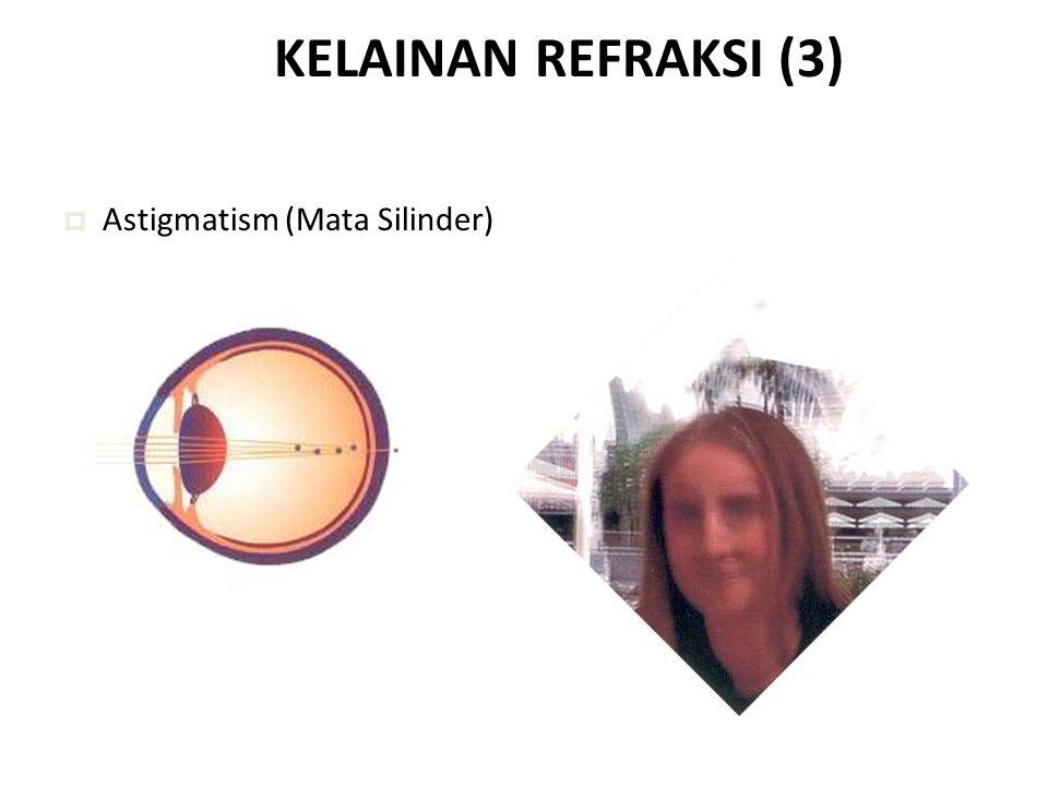 KELAINAN REFRAKSI (3) Astigmatism (Mata Silinder)
