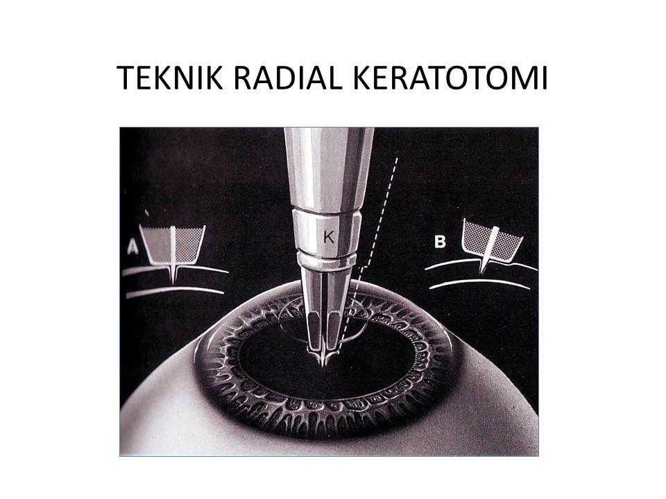 TEKNIK RADIAL KERATOTOMI