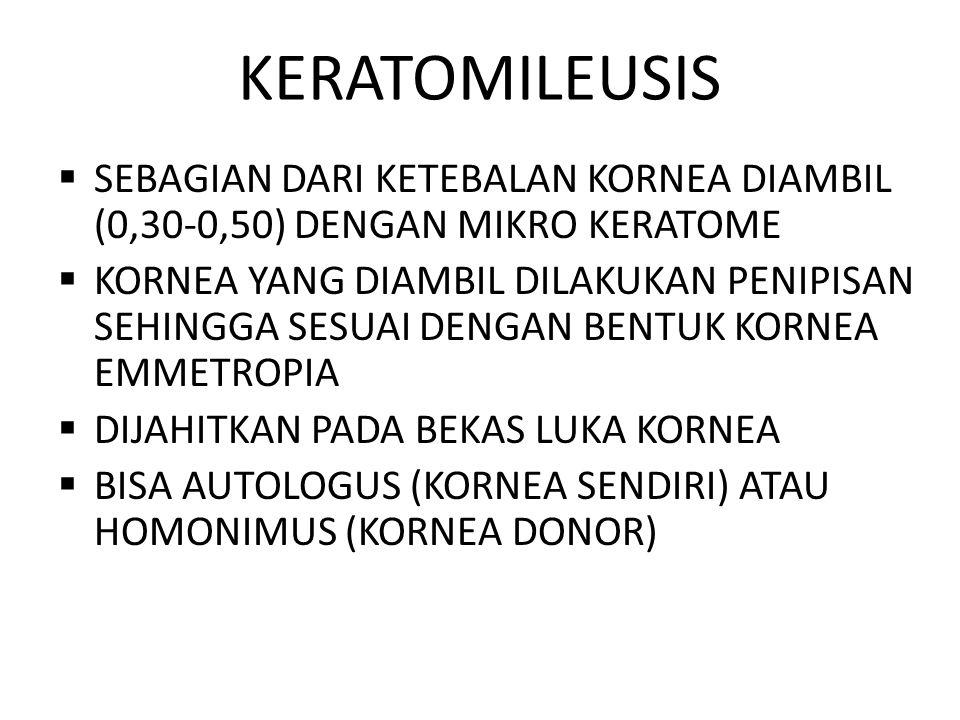 KERATOMILEUSIS SEBAGIAN DARI KETEBALAN KORNEA DIAMBIL (0,30-0,50) DENGAN MIKRO KERATOME.