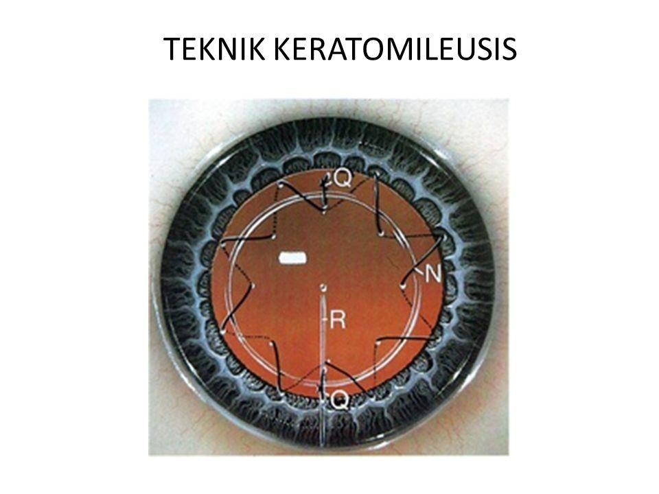 TEKNIK KERATOMILEUSIS