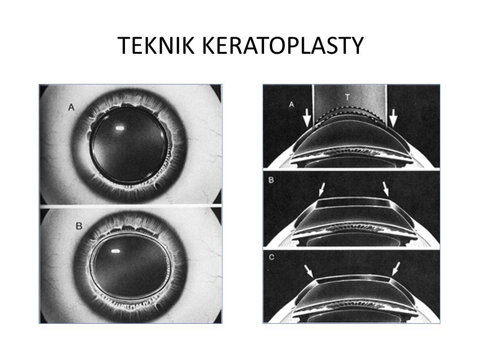 TEKNIK KERATOPLASTY