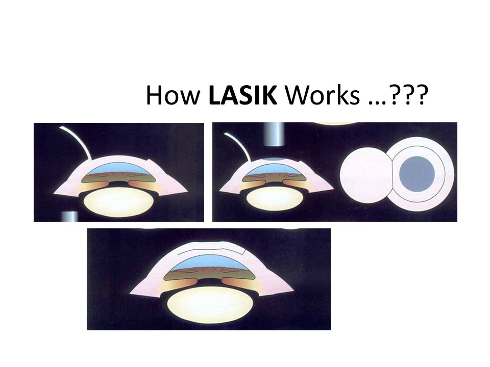 How LASIK Works …