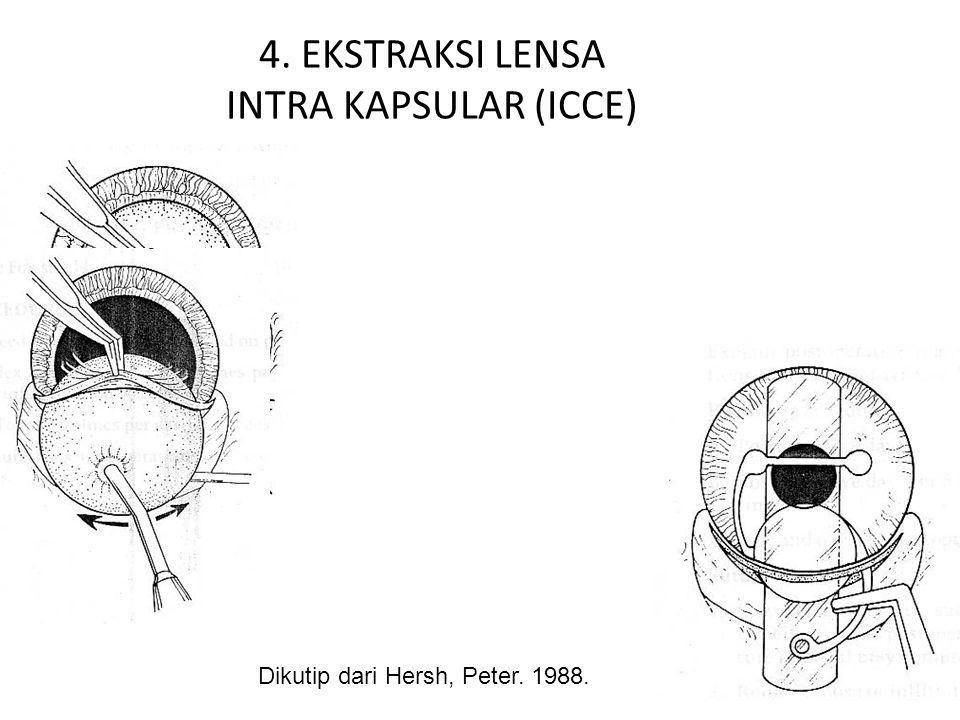 4. EKSTRAKSI LENSA INTRA KAPSULAR (ICCE)