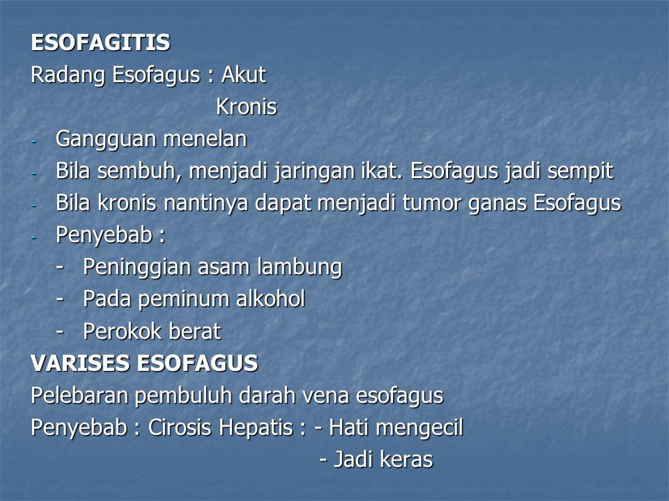 ESOFAGITIS Radang Esofagus : Akut. Kronis. Gangguan menelan. Bila sembuh, menjadi jaringan ikat. Esofagus jadi sempit.