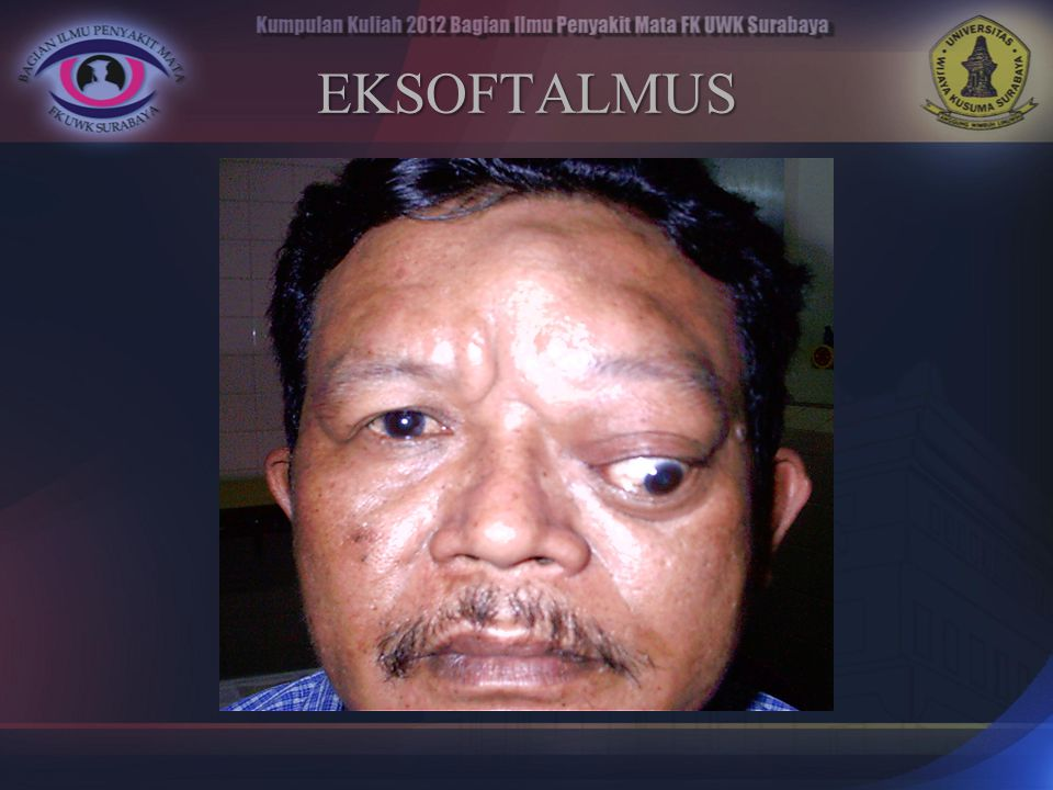 EKSOFTALMUS