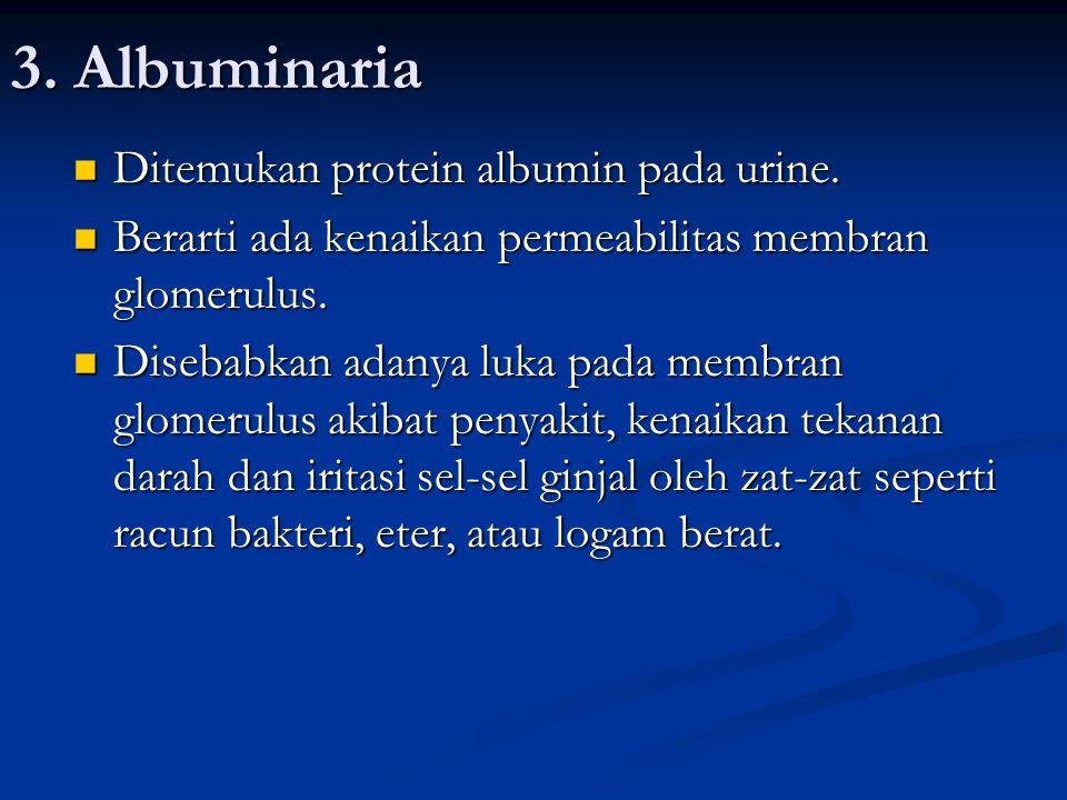 3. Albuminaria Ditemukan protein albumin pada urine.
