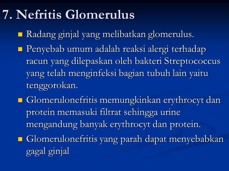 7. Nefritis Glomerulus Radang ginjal yang melibatkan glomerulus.