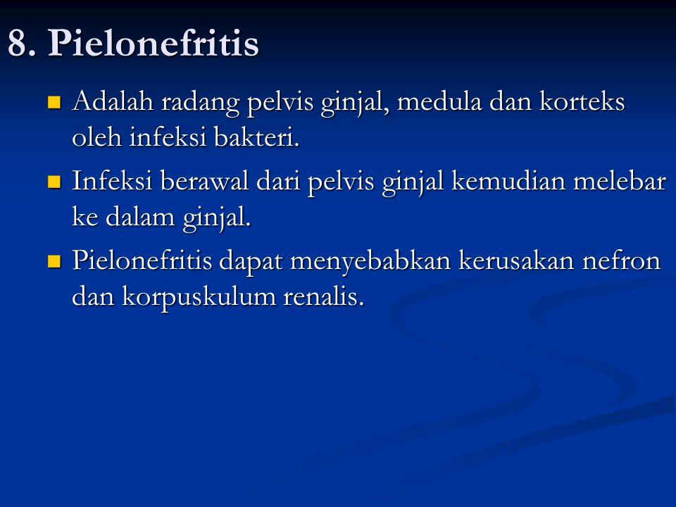8. Pielonefritis Adalah radang pelvis ginjal, medula dan korteks oleh infeksi bakteri.