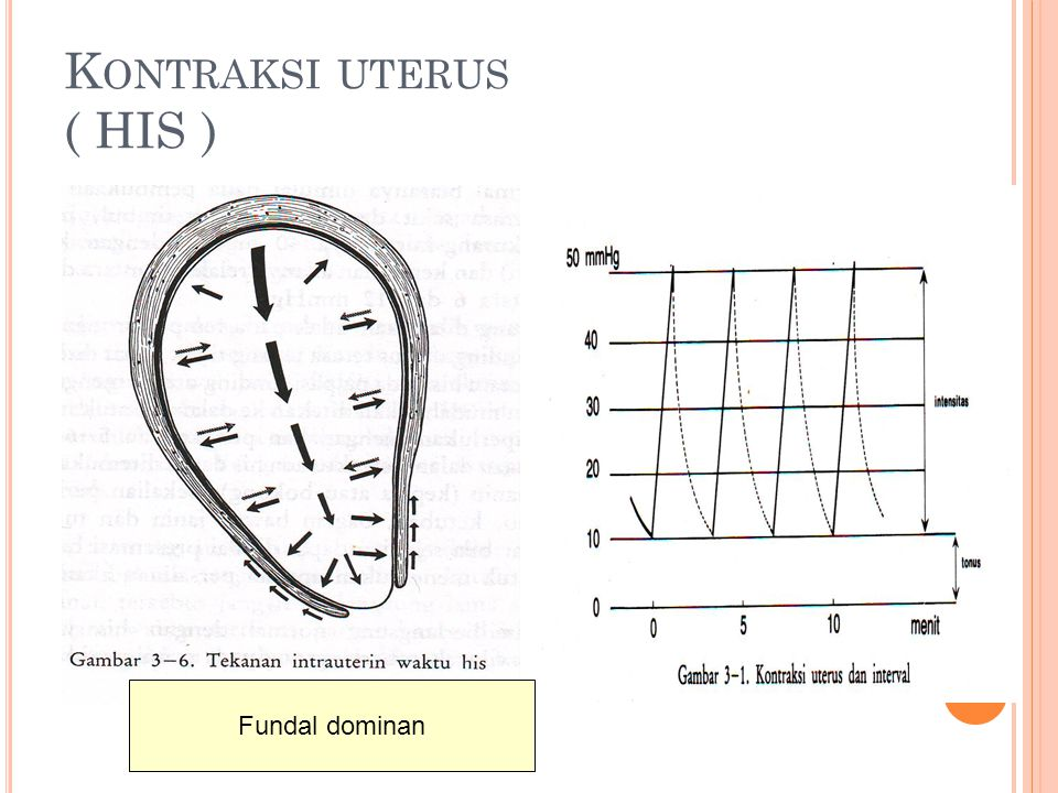 Kontraksi uterus ( HIS )