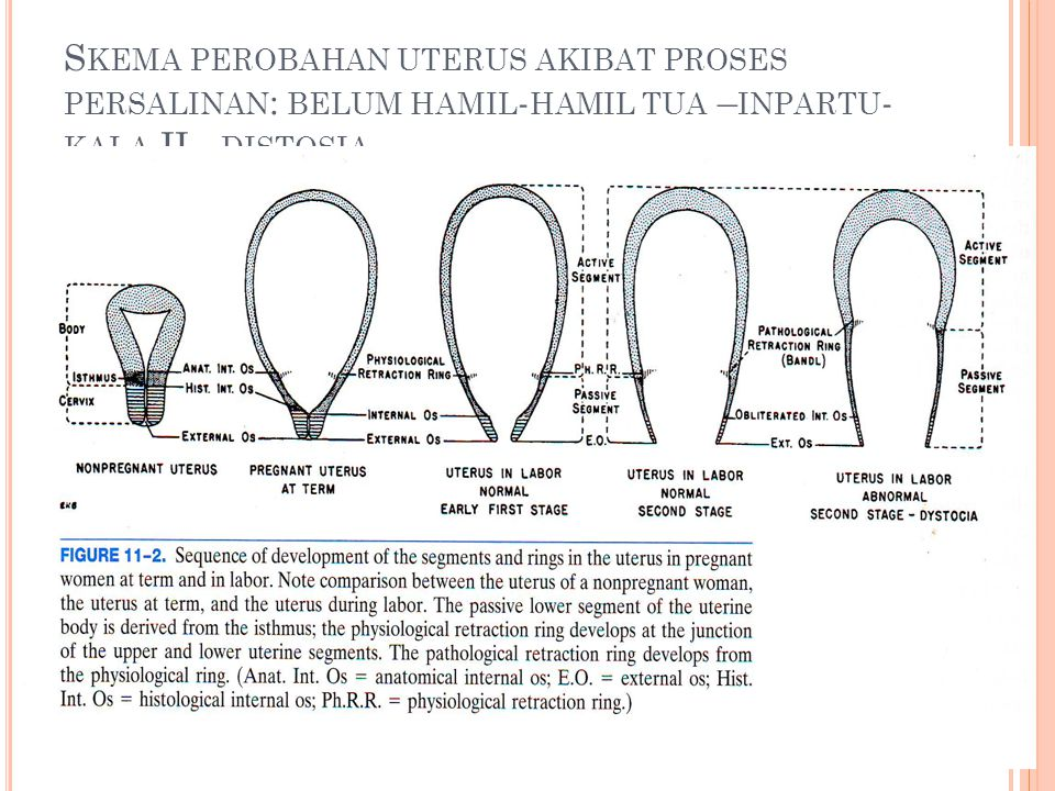 Skema perobahan uterus akibat proses persalinan: belum hamil-hamil tua –inpartu-kala.II - distosia
