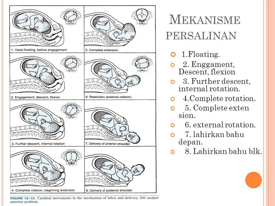 Mekanisme persalinan 1.Floating. 2. Enggament, Descent, flexion
