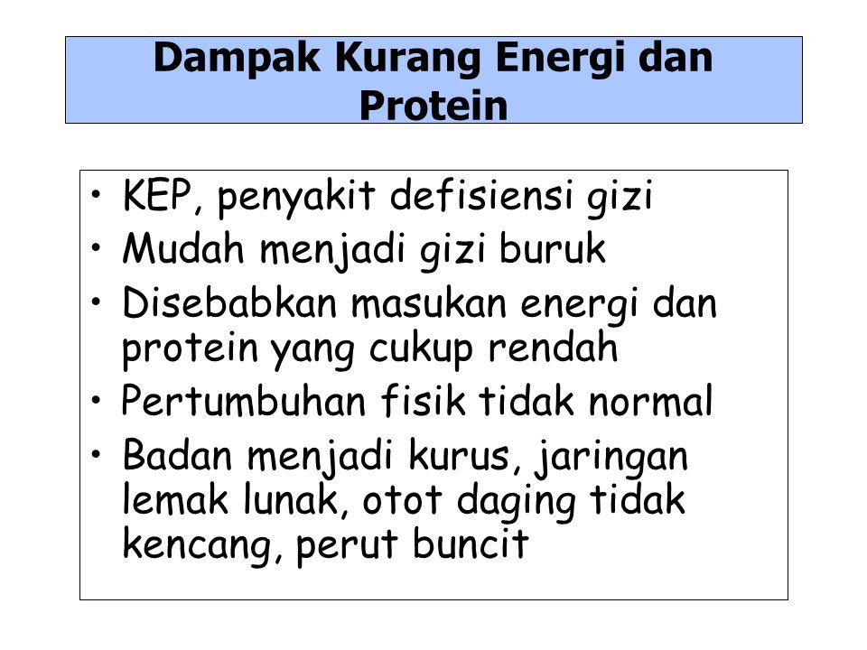Dampak Kurang Energi dan Protein