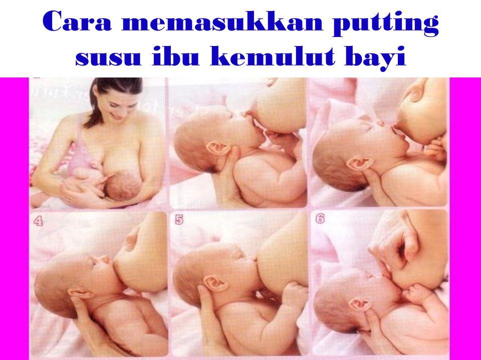 Cara memasukkan putting susu ibu kemulut bayi