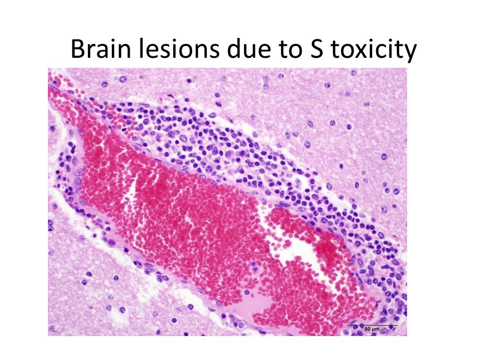Brain lesions due to S toxicity