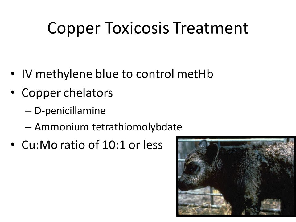Copper Toxicosis Treatment