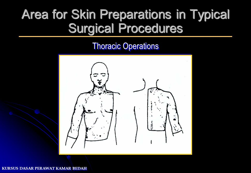 Area for Skin Preparations in Typical Surgical Procedures